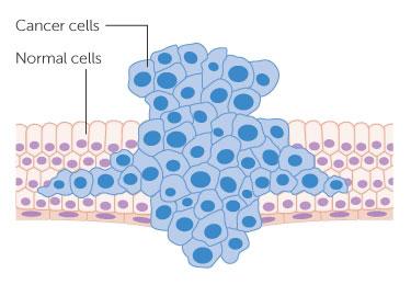 diagram-showing-a-tumour-forcing-its-way-through-normal-tissue