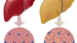 fatty-liver-illustration
